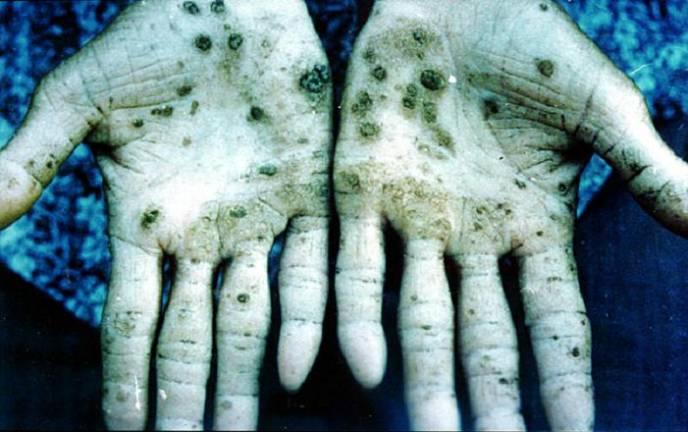 Arsenic hands